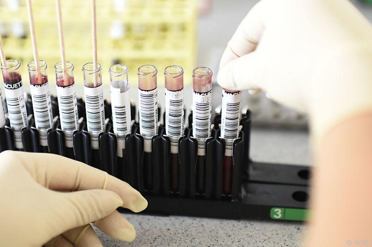 Botenstoff Serotonin spielt auch bei Krebs eine Rolle