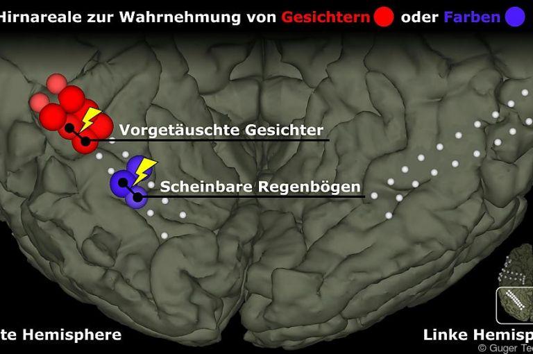 Forscher lassen mit Hirnelektroden Gesichter und Regenbögen entstehen