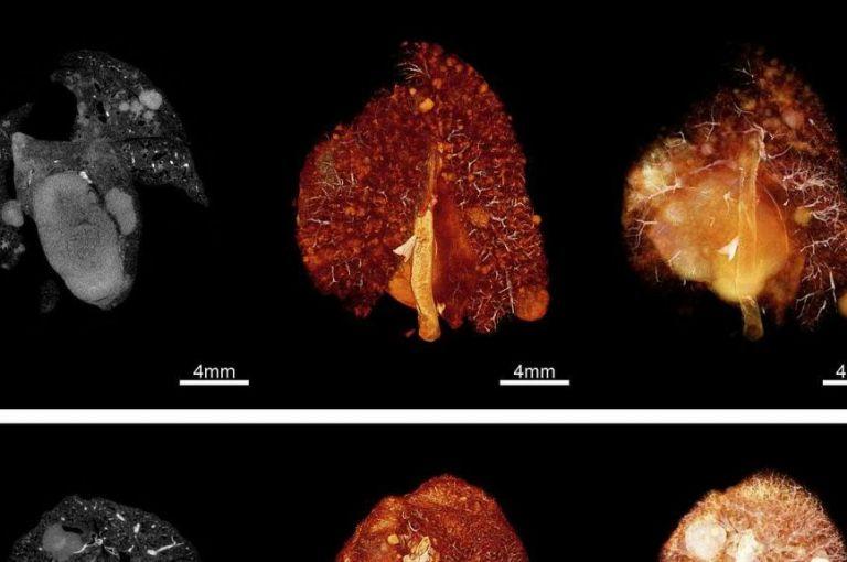 Verbindung zwischen weiblichen Sexualhormonen und Lungenkrebs geklärt