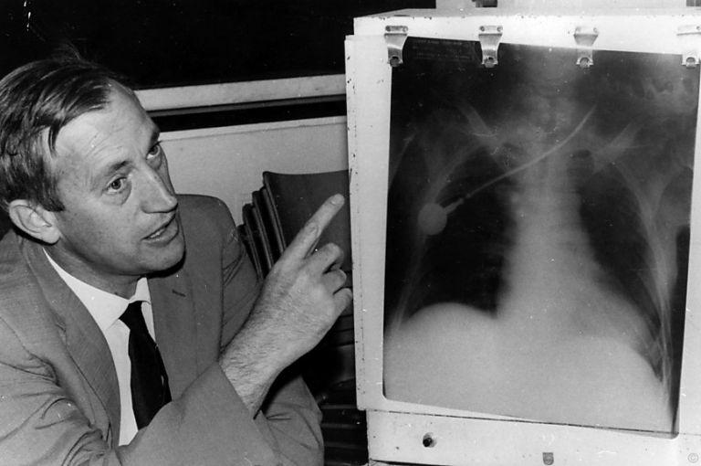 Vor 50 Jahren: Erste Herztransplantation durch Christiaan Barnard